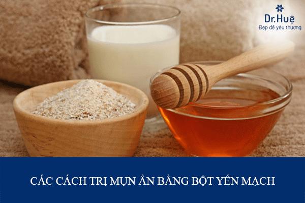 Cách trị mụn trứng cá hiệu quả tại nhà Cac-cach-tri-mun-an-bang-bot-yen-mach-min