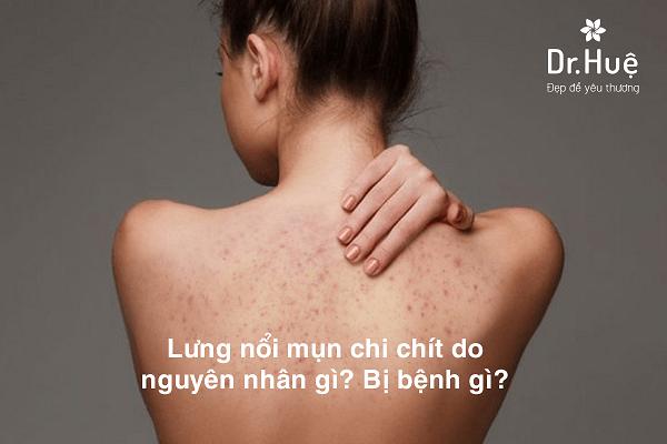 Nổi mụn ở lưng là bệnh gì nguyên nhân và cách trị mụn lưng tại Dr. Huệ