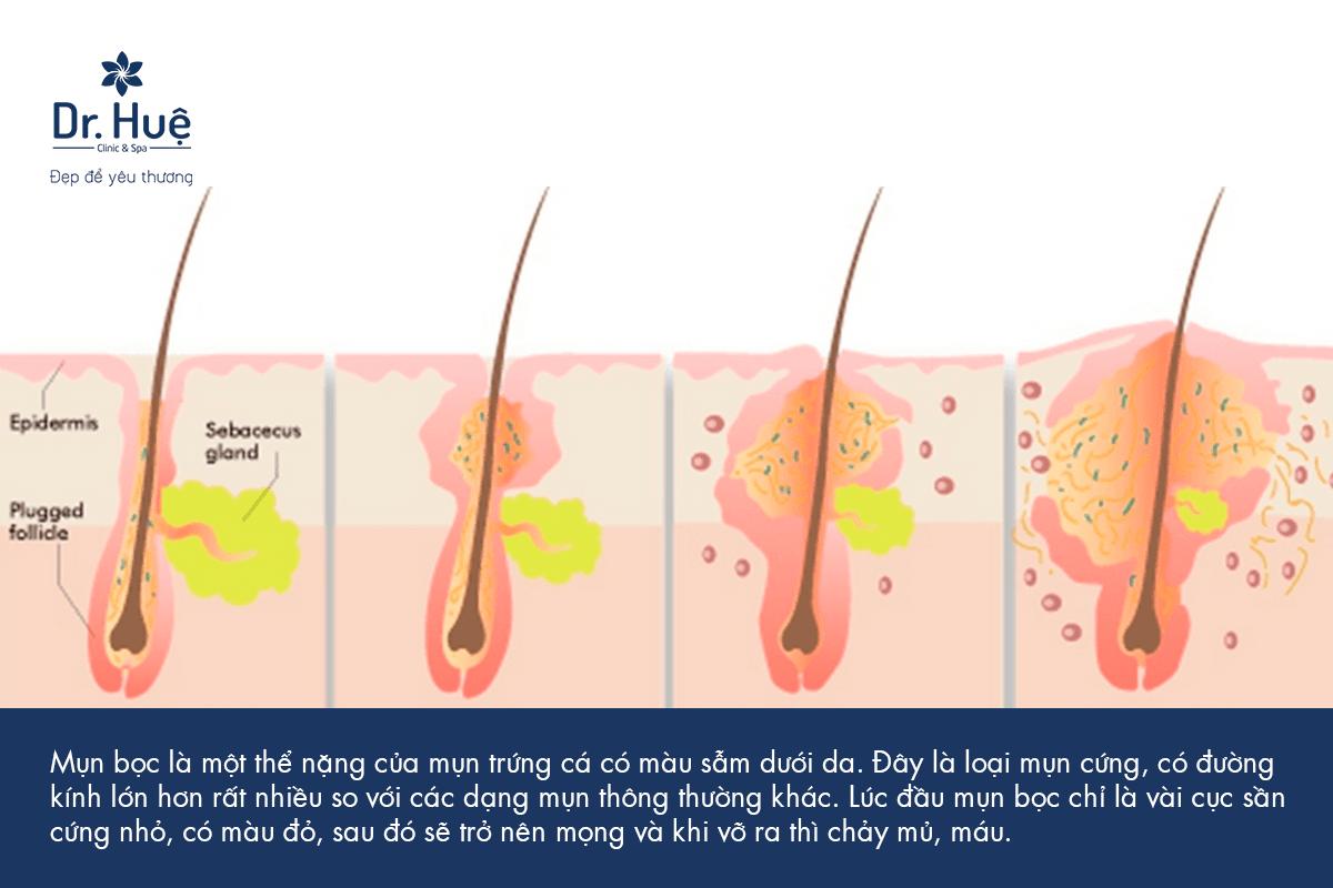 Cách điều trị cách xử lý mụn bọc có mủ ở mặt Nhanh Lành Nhất
