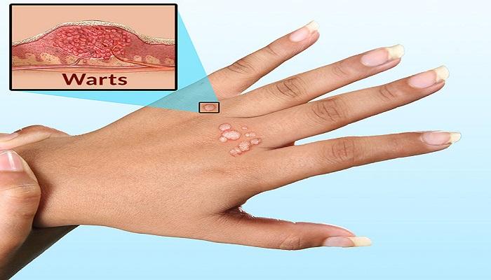 Mụn cơm xuất hiện ở đâu và các cách chữa trị mụn cơm trên mặt ở tay hiệu quả nhất