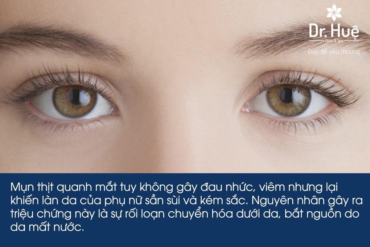 Mụn thịt là gì, nguyên nhân gây nên mụn thịt quanh mắt và cách chữa trị