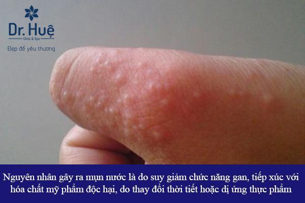 Nguyên nhân - cách chữa mụn nước nổi ở tay chân và khắp người