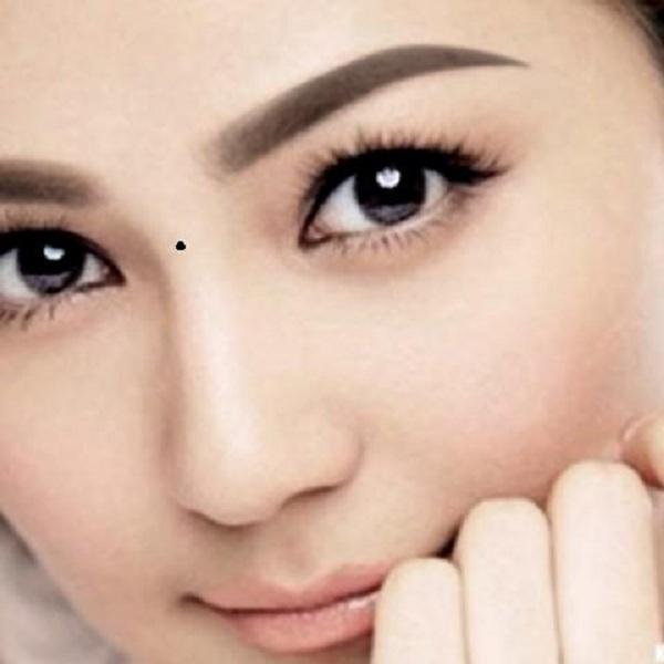 Phụ nữ nên xóa nốt ruồi xuất hiện ở trên sống mũi giữa hai mắt