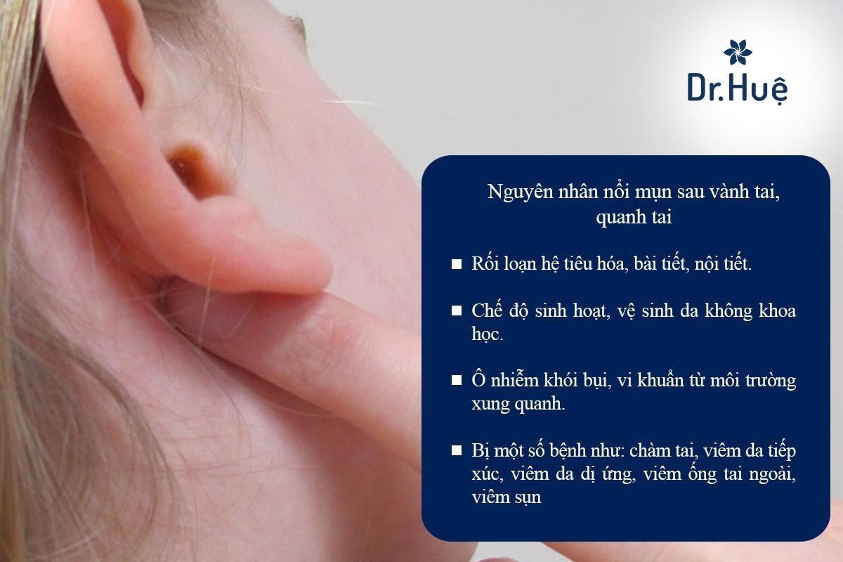 Bị nổi mụn mọc mụn ở quanh vùng tai sau vành tai nên làm gì