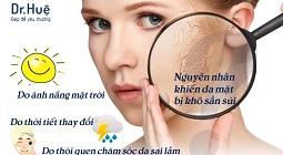 Nguyên nhân và cách chữa da mặt bị khô sần sùi trở nên mịn màng