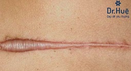 Cách điều trị sẹo lồi lâu năm ở trên mặt hiệu quả nhất tại dr. huệ