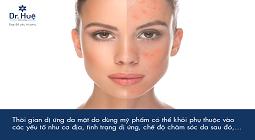Dùng mỹ phẩm bị dị ứng da mặt bao lâu thì khỏi, có tự hết được không