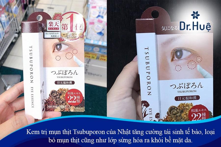 [Review] Kem trị mụn thịt của Nhật Tsubuporon 1.8ml có tốt không
