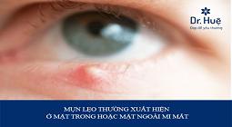 Mụn lẹo là gì, nguyên nhân và cách cách làm xẹp mụt lẹo ở mắt hiệu quả