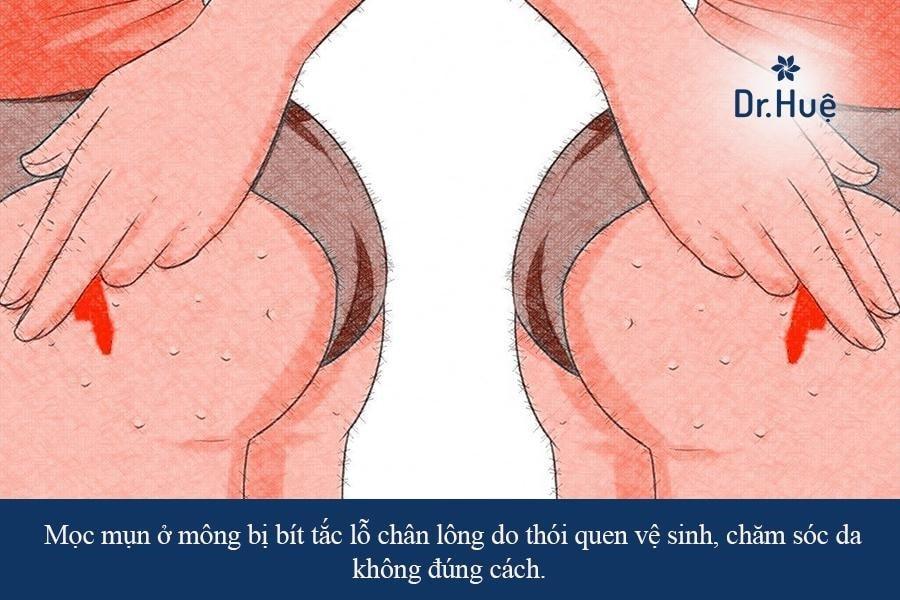 Nổi mụn mọc mụn ở mông là bị sao và cách trị hiệu quả