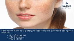 Nám da là gì, nguyên nhân và cách điều trị nám da một cách hiệu quả