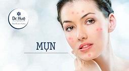 nguyên nhân và cách trị da mặt bị nổi nhiều những mụn nhỏ li ti đỏ ngứa