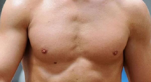 Nốt ruồi trên ngực đàn ông nói lên điều gì