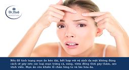Cách xông hơi mặt trị mụn ẩn dưới da đúng cách tại nhà
