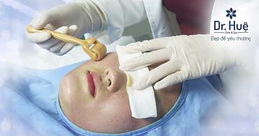 Lăn kim tế bào gốc, Nano hiệu quả tốt nhất Dr. Huệ Clinic & Spa